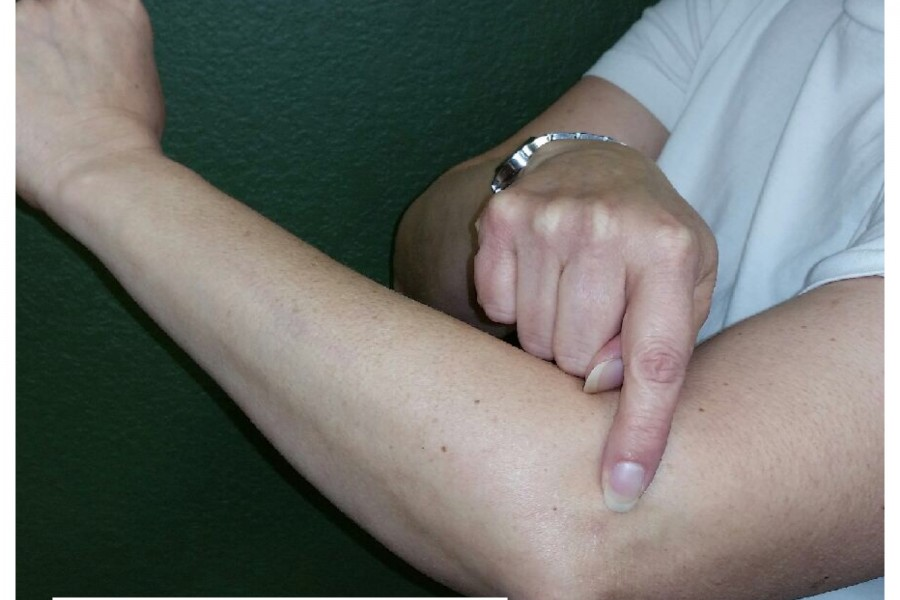 Tennis Elbow. What is it?